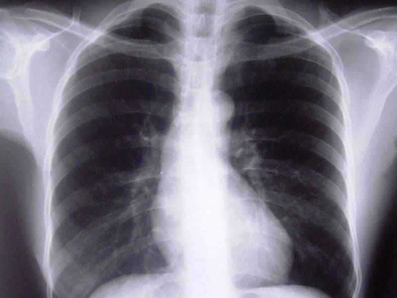 TB is 100pc curable, says expert