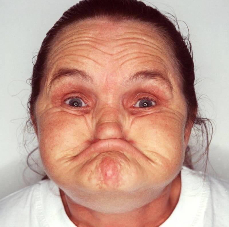 'World's ugliest woman' dies at 67