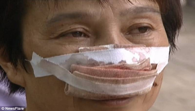 Man bites off wife's nose, eats it for not picking his calls