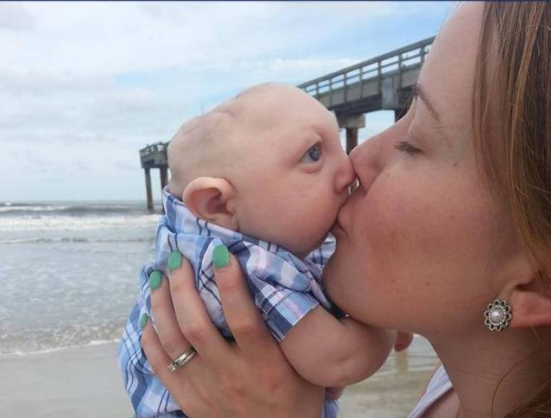 This 'brainless' baby defied odds by reaching his first birthday