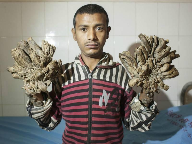 'Tree Man' undergoes successful surgery in Bangladesh