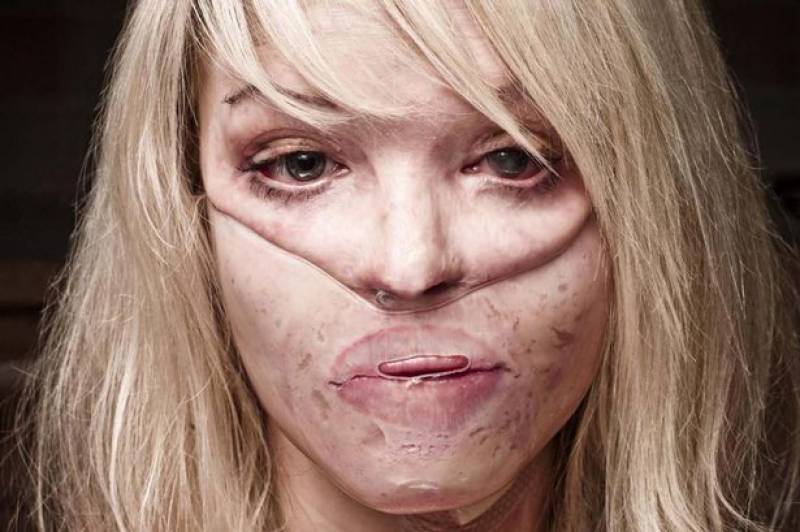 Acid attacks on the rise: Sharmeen Obaid's documentary-making skills needed in the West