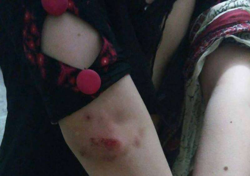 Transgenders release shocking pictures of police brutality in KP