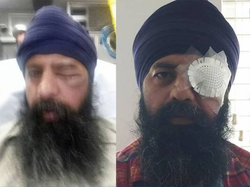Hate crime surge in US as Sikh man faces attack