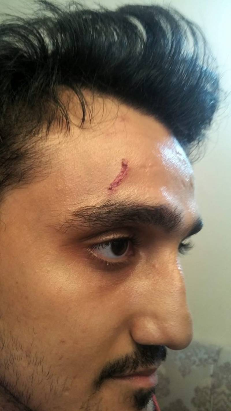 Rangers brutally beat IBA student for doing something perfectly logical