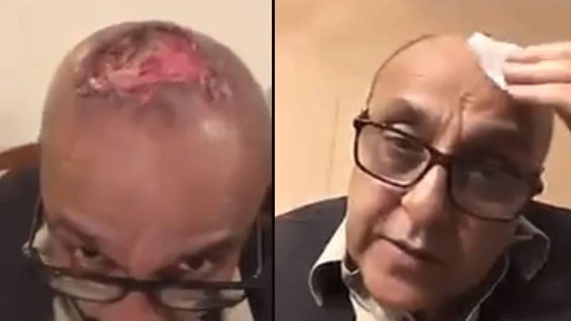 Actor Sajid Hasan shares horrible hair transplant ordeal on social media (VIDEO)