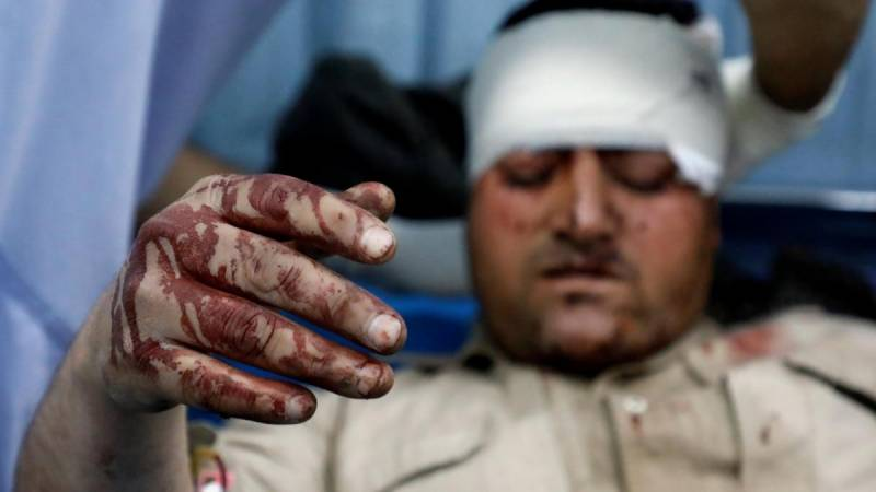 Four killed, over 100 wounded in Kabul truck bomb attack