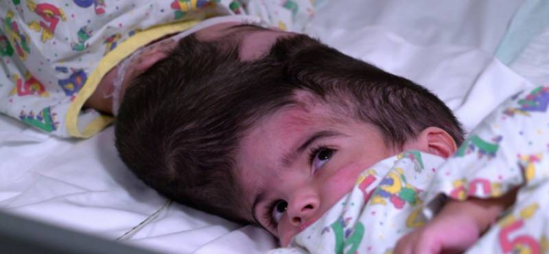 Pakistani twins conjoined by skulls separated in London hospital after 55 hours of surgeries