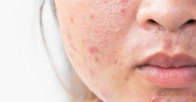 Here are tips to make you fight acne
