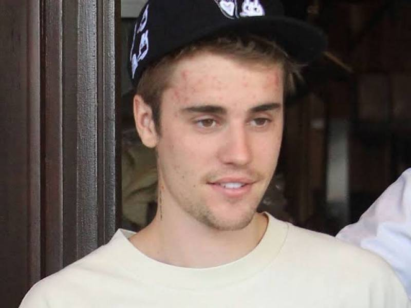 Justin Bieber reveals he has Lyme disease but vows to be 'back better than ever'