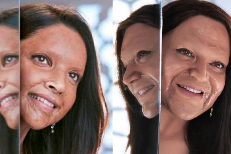 Shoaib Khan pays tribute to acid attack survivors with his latest transformation