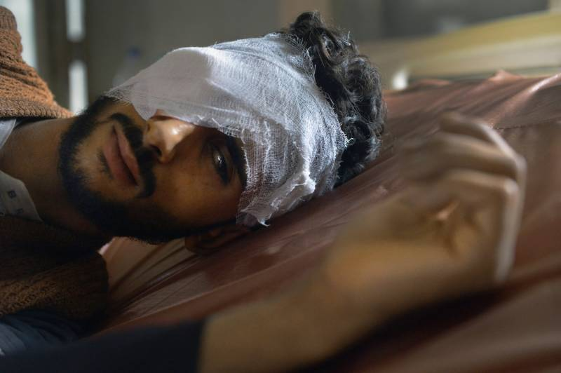 'Stop India' from blinding, maiming occupied Kashmiris