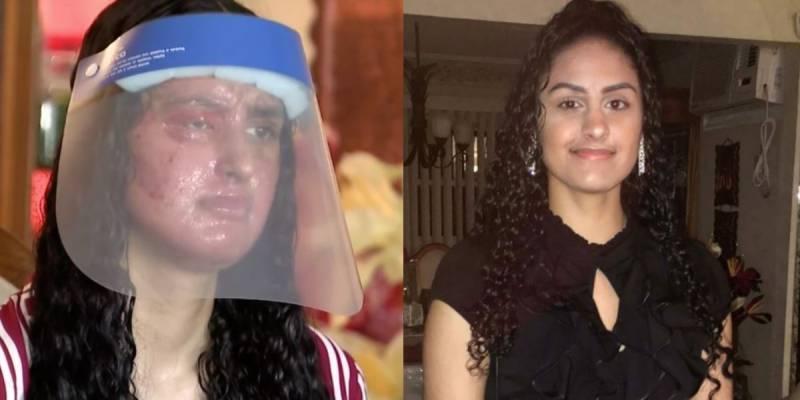 Pakistan-origin girl blinded, disfigured in New York acid attack